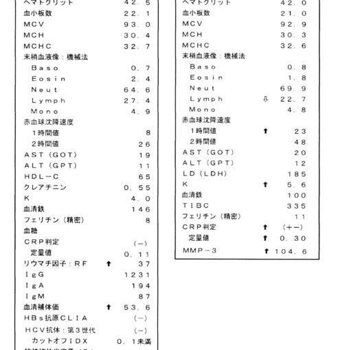 リウマチ発症のタイミングを検査データでとらえられた